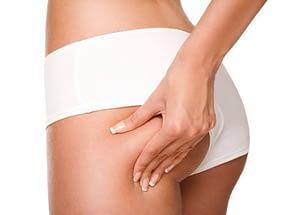Treatment bei Cellulite